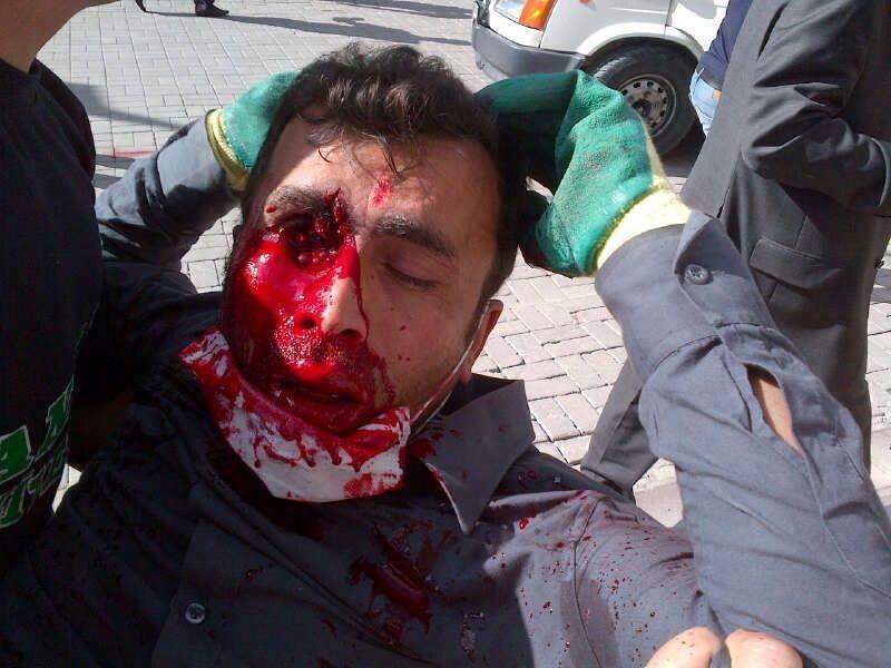 تصویری به شدت دلخراش از تظاهرات خونین در ترکیه