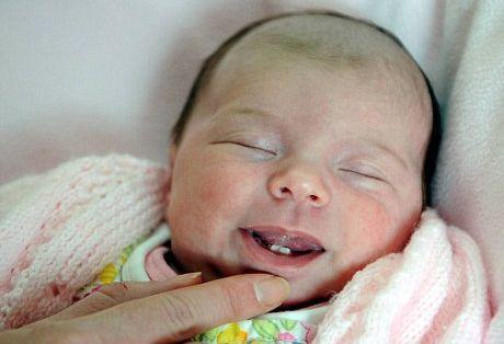 تولد یک نوزاد با دندان + تصاویر