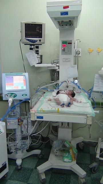 تولد نوزاد دو سر در دزفول + عکس