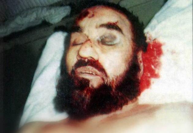 جسد شهید مطهری پس از شهادت + عکس