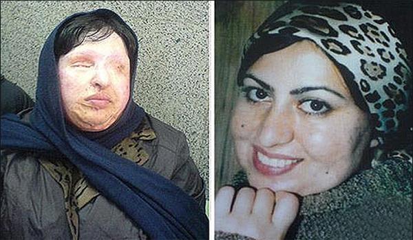آمنه بهرامی : از قصاص نکردن مجید موحدی(اسیدپاش) پشیمانم + فیلم