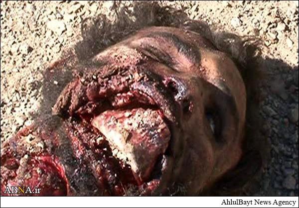 اجساد دو داعشی بعد از عملیات انتحاری + تصاویر 18+