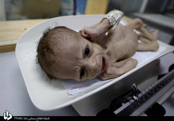 جنایات سعودی ها در یمن+تصاویر